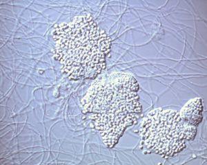 Друзы актиномицетов