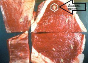 Цистицерк в мышечной ткани