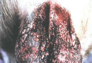Кровоподтеки