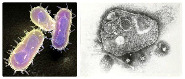 Чумная палочка и вирус чумы КРС под микроскопом