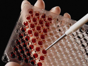 Исследование крови на наличие вируса