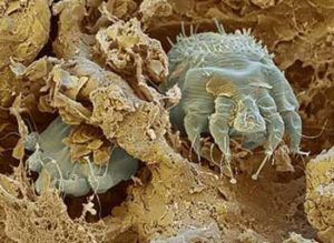 Телеонимфы расселяются на нетронутые участки кожи и прогрызают новые ходы