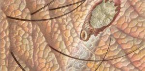 Клещи проделывают в коже отверстие и проникают вглубь