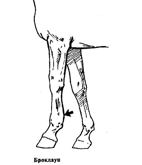 Брокдаун - воспаление сухожилий сгибателей пальца