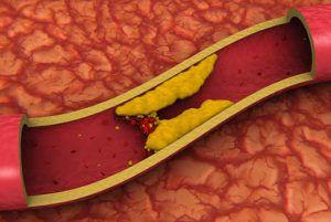 Холестерин на стенках сосуда