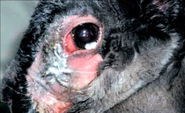 Дакриоцистит на фоне непроходимости носослезного канала